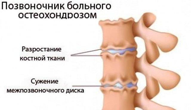 Чем можно мазать шею при остеохондрозе при беременности